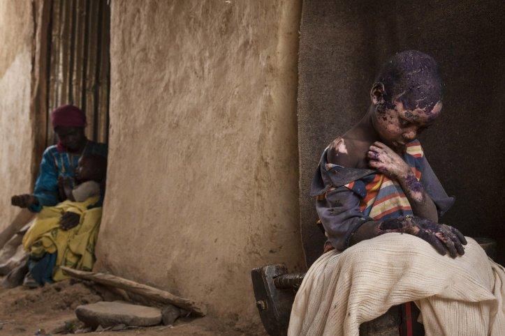 Segundo premio de la categoría Problemas Contemporáneos, Adriane Ohanesian. Adam Abdel, de 7 años, sufrió graves quemaduras después de que una bomba cayera al lado de su casa Burgu, Darfur Central, Sudán