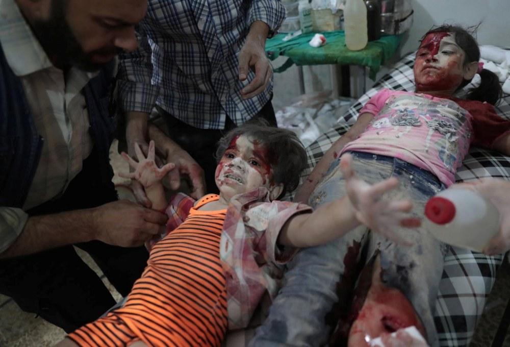 Spot News, segundo premio. Dos niñas son atendidas luego de un ataque con bombas del gobierno sirio a la región rebelde de Douma, al este de Damasco.Abd Doumany, Agence France Presse
