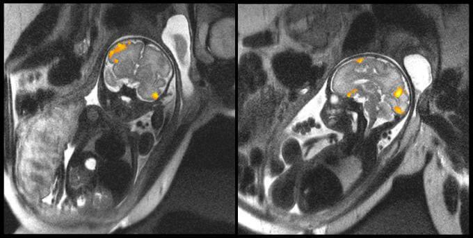 Imágenes nunca vistas de la actividad cerebral de fetos humanos.