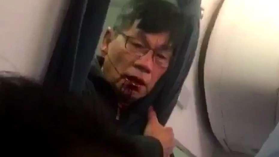 Quién es el pasajero que fue sacado a la fuerza del vuelo de United Airlines