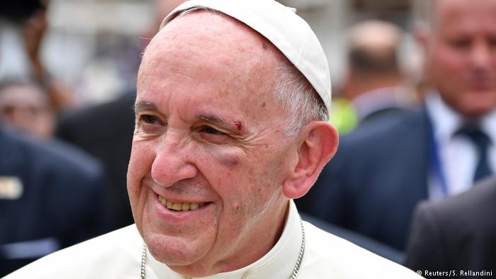 Kolumbien Cartagena Papst Franziskus mit Beule (Reuters/S. Rellandini)