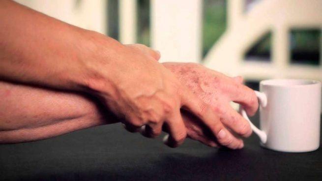 Consiguen detener el Parkinson en sus etapas iniciales